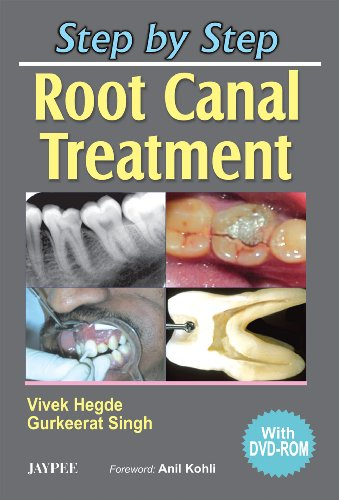 9788180618741: Step by Step Root Canal Treatment with DVD-ROM