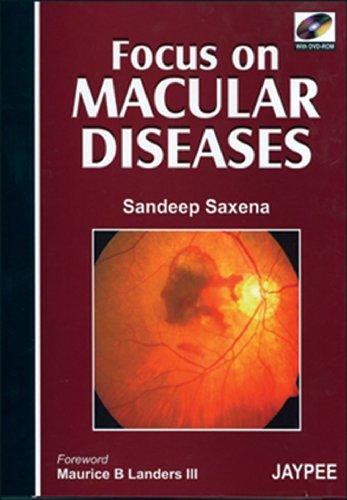 9788180619533: Focus on Macular Diseases