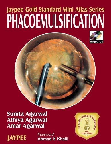 Phacoemulsification (Series: Jaypee Gold Standard Mini Atlas): Amar Agarwal,Athiya Agarwal,sunita ...