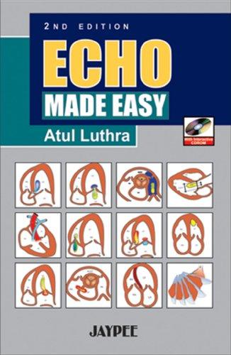 9788184480849: Echo Made Easy