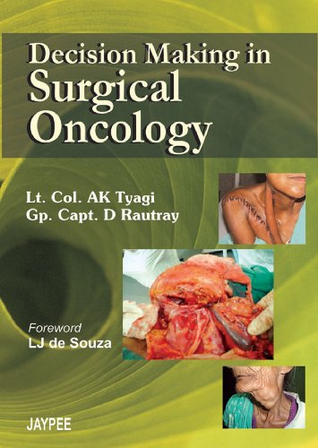 Decision Making in Surgical Oncology: A K Tyagi