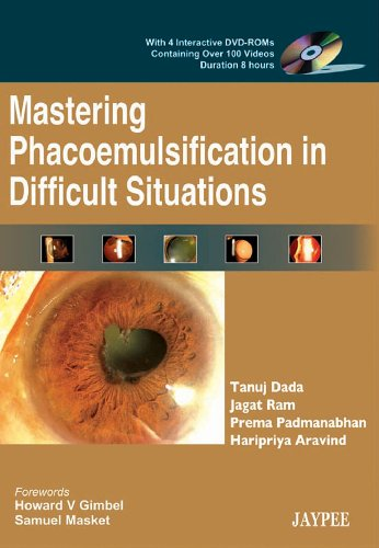9788184481792: Mastering Phacoemulsification in Difficult Situations (with 4 Interactive DVD-ROMs) Cont. over 100 Videos