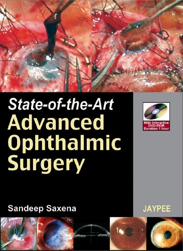 9788184481884: State-of-the Art Advanced Ophthalmic Surgery (with DVD-ROM)