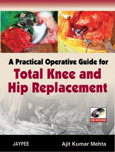 Practical Operative Guide for Total Knee and: Ajit Kumar Mehta