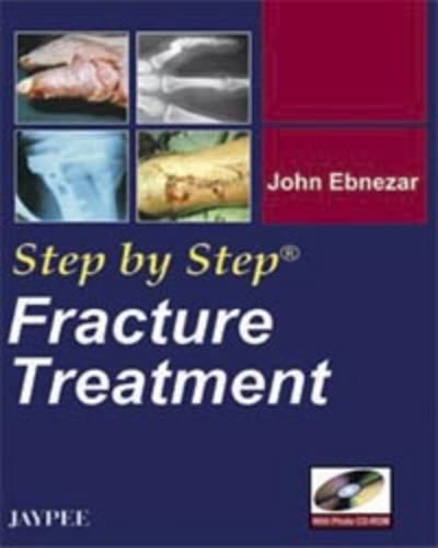 9788184482546: Fracture Treatment (Step by Step)