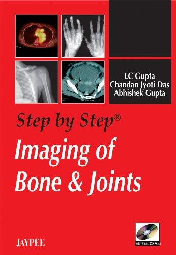 Step by Step Imaging of Bone and: Abhishek Gupta,L.C. Gupta,Chandan