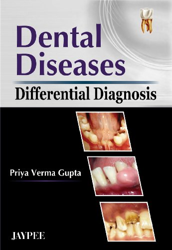 Dental Diseases Differential Diagnosis: Priya Verma Gupta