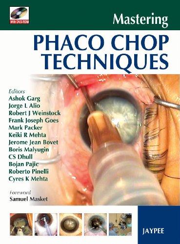 9788184483819: Mastering Phaco Chop Techniques
