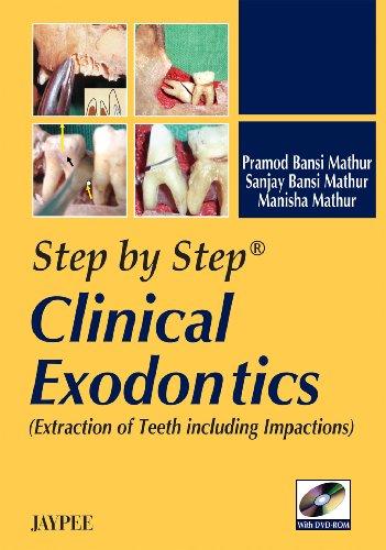 Step by Step Clinical Exodontics: Mathur Manisha Mathur
