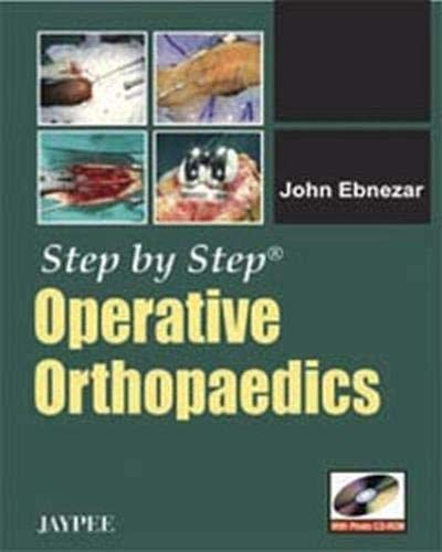 Step By Step Operative Orthopaedics: John Ebnezar