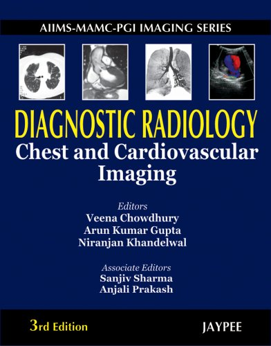 Diagnostic Radiology: Chest and Cardiovascular Imaging (Third: Arun Kumar Gupta,