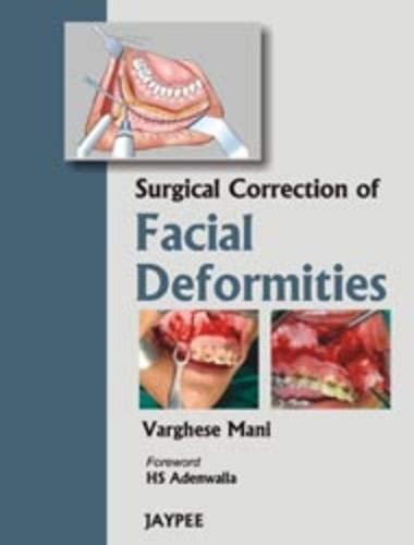 Surgical Correction of Facial Deformities: Varghese Mani (Author) & H S Adenwalla (Frwd)