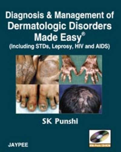 Diagnosis and Management of Dermatologic Disorders Made Easy (Including STDs, Leprosy, HIV and AIDS...