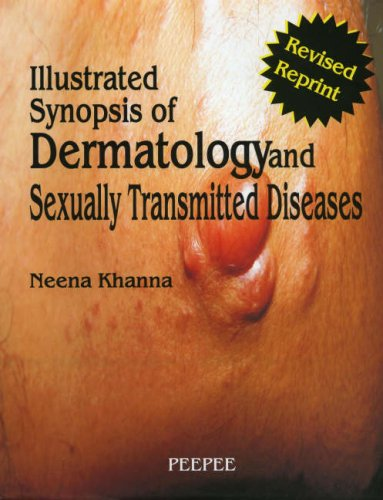 9788188867424: Illustrated Synopsis of Dermatology and Sexually Transmitted Diseases