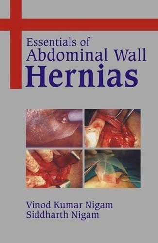 Essentials of Abdominal Wall Hernias: Vinod Kumar Nigam,Siddharth Nigam