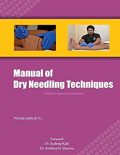 9788192426723: Manual of Dry Needling Techniques