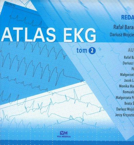 9788375994100: Atlas EKG Tom 2