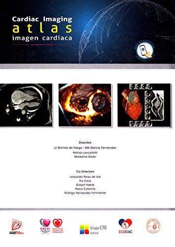 9788416527694: Atlas de Imagen Cardíaca-Cardiac Imaging Atlas
