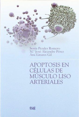 Apoptosis en células de músculo liso arteriales: Alejandre Pérez, María