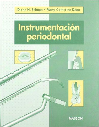 Instrumentación periodontal: Schoen, Diane H.