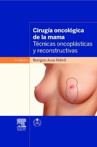9788445822173: Cirugía Oncológica De La Mama - 2ª Edición (+ Acceso Web)