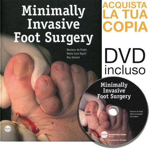 9788461316090: Minimally invasive foot surgery