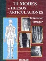 9788471013637: Tumores de Huesos y Articulaciones (Spanish Edition)