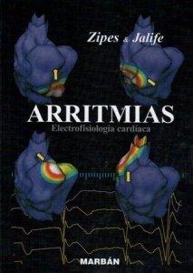9788471014665: Arritmias: Electrocardiografía Cardiaca