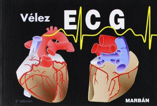 9788471015594: ECG. Pautas de electrocardiografía