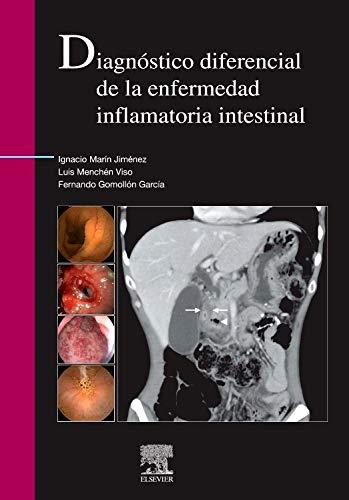 Diagnostico diferencial de la enfermedad inflamtoria instestinal: VV .AA