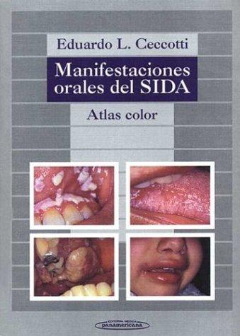 9788479032876: Manifestaciones orales del SIDA : atlas color