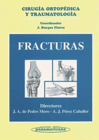 9788479033446: Fracturas (Spanish Edition)