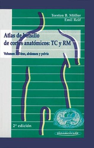 9788479035686: Atlas de Bolsillo de Cortes Anatomicos Tc y Rm Volumen 2