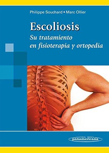 9788479036928: Escoliosis. Su tratamiento en fisioterapia y ortopedia