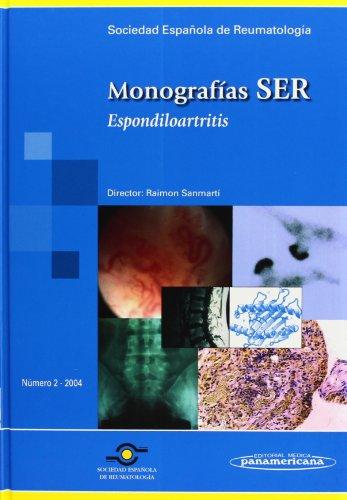 9788479039059: Monografía SER: Espondiloartritis