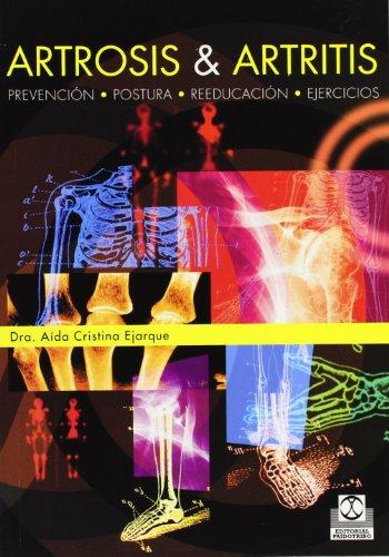 ARTROSIS & ARTRITIS. Prevencion, postura, reeducacion y ejercicios (Bicolor) (Spanish Edition):...