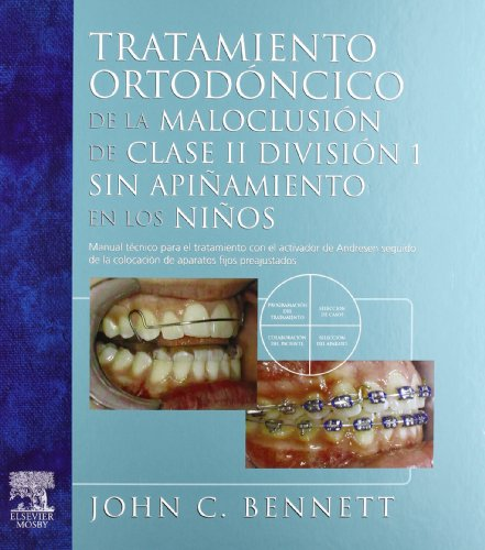 Tratamiento ortodóntico de la maloclusión de clase: Bennett, John C.