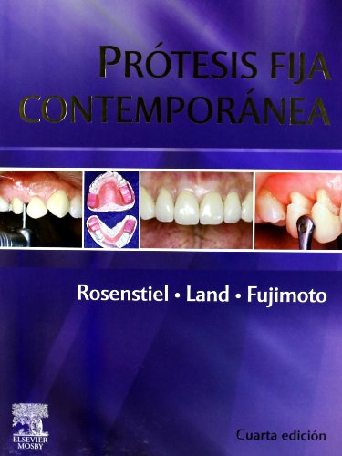 9788480863049: Prótesis fija contemporánea, 4e (Spanish Edition)