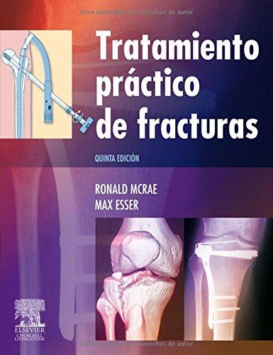 9788480866385: Tratamiento práctico de fracturas