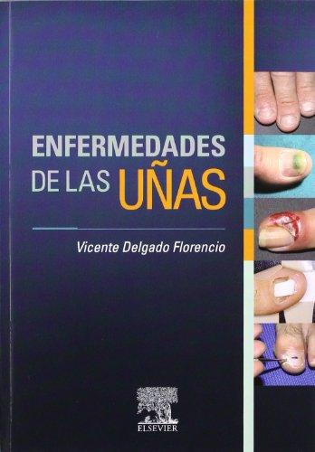 9788480866859: Enfermedades de las uñas