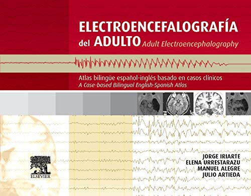9788480867443: Electroencefalografía del adulto/Adult electroencephalography