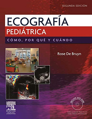 9788480868815: Ecografia Pediatrica. (Spanish Edition)