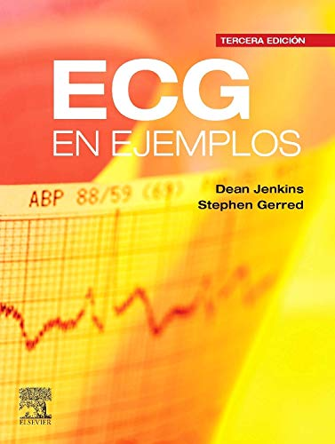 9788480869430: ECG EN EJEMPLOS. 3ª ED.