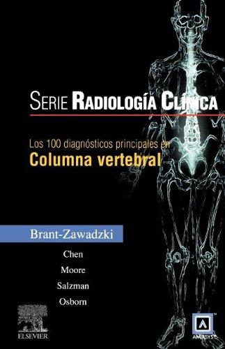 9788480869478: LOS 100 DIAGNOSTICOS PRINCIPALES EN COLUMNA VERTEBRAL (Spanish Edition)