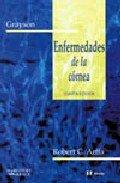9788481743432: GRAYSON. Enfermedades de la córnea, 4e (Spanish Edition)