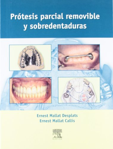 Protesis Parcial Removible y Sobredentadura (Spanish Edition): Stephane Mallat