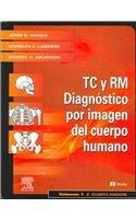 Tomografia Computadorizada y Resonancia Magnetica del Cuerpo: Haaga MD FACR