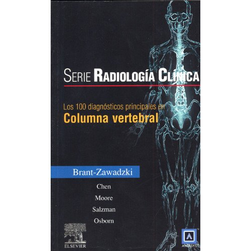 9788481747560: Serie Radiología Clínica: Los 100 diagnósticos principales en columna vertebral (Serie Pocket De Radiologia)