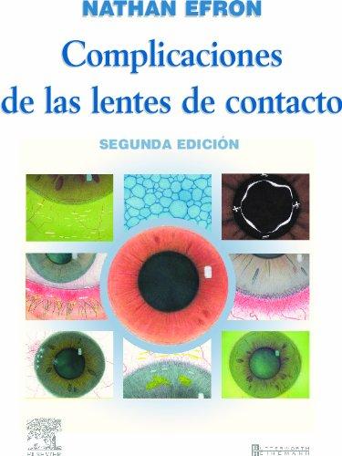 9788481748468: Complicaciones de las lentes de contacto