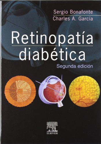 Retinopatía diabética, 2e (Spanish Edition): Bonafonte, Sergio